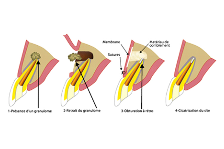 chirurgie orale sierre cabinet