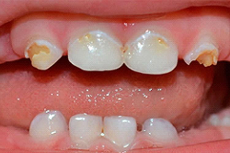 médecine dentaire conservatrice chateau sierre